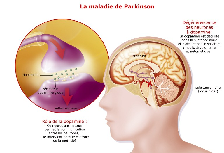 parkinson et médiation animale